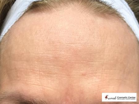 Forehead lines treated with Restylane Silk on 60 year old female - After