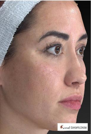 Sculptra®: Patient 3 - Before 2
