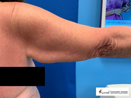 Laser Liposuction of the arms on a 69 year old female - Before Image