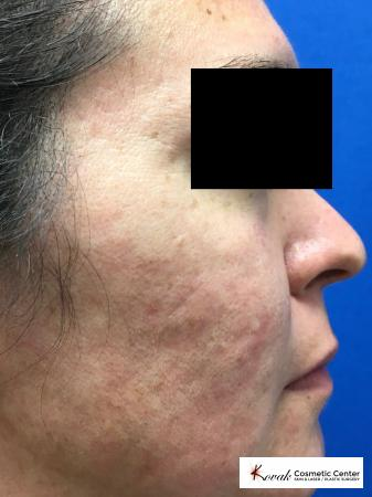 Filler for Acne Scars using Juvederm on a 32 year old female - After Image