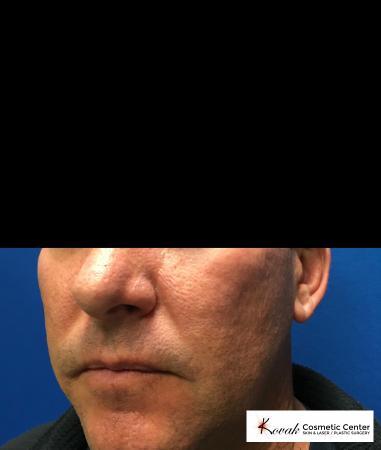 Juvéderm® XC: Patient 1 - After 2