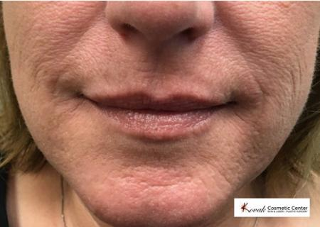 Restylane® Silk: Patient 5 - Before Image