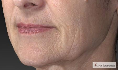 Injectables - Mouth: Patient 8 - Before Image 4