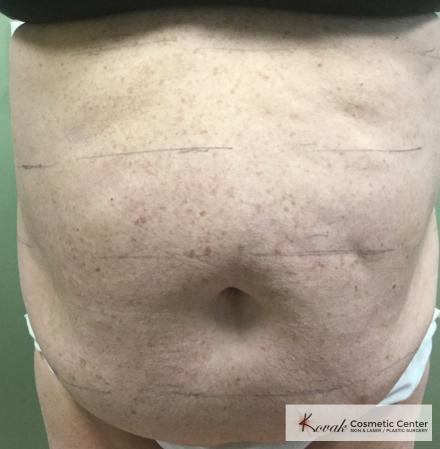 Slim Tyte: Patient 7 - Before Image