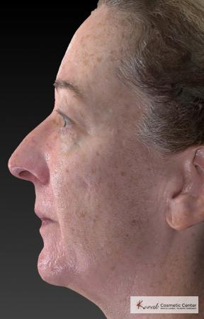 Tyte And Bryte – Face: Patient 6 - Before Image 3