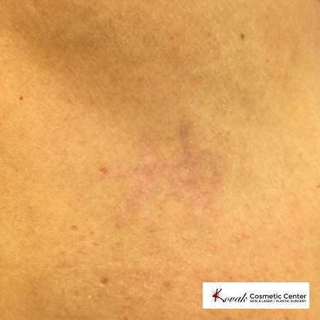 Tattoo Removal: Patient 2 - After