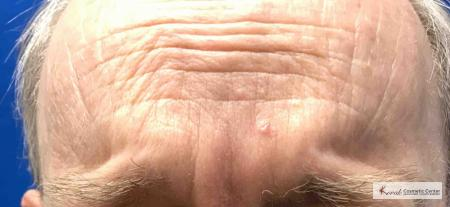 Juvéderm® XC: Patient 10 - After Image