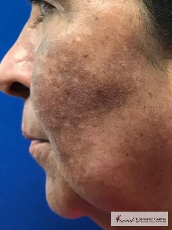 Melasma treatment using Venus Viva on a 57 year old female - Before