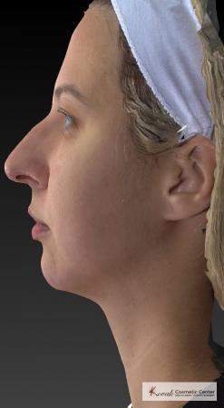 Restylane® Lyft: Patient 1 - After 2