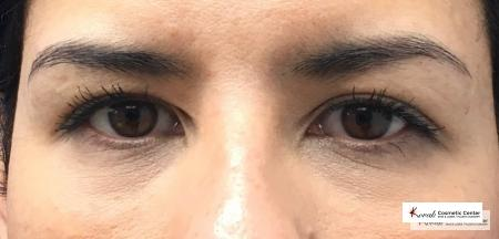 Restylane® Silk: Patient 1 - After Image