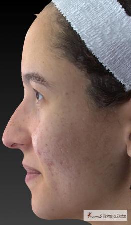 Venus Viva: Patient 3 - Before Image 2