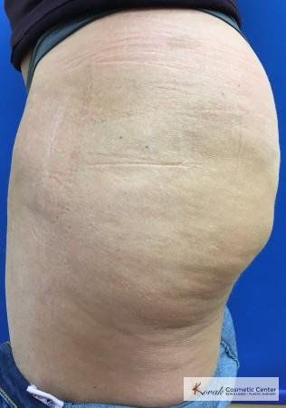 Cellulite Reduction: Patient 4 - After 2