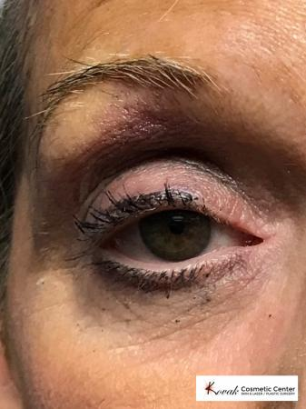 Modified Botox Brow Raise on a 64 year old Woman - Before and After 2