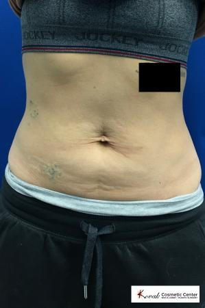 Emsculpt Neo for the abdomen on a 32 year old female  - Before