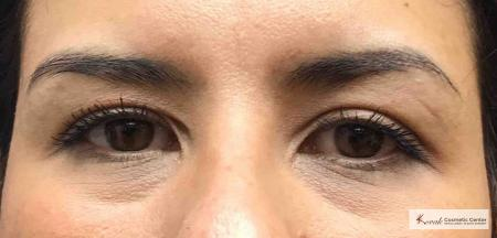 Restylane® Silk: Patient 14 - Before Image