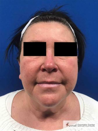 Neck Lift: Patient 2 - Before Image