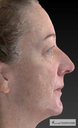 Tyte And Bryte – Face: Patient 6 - Before Image 4