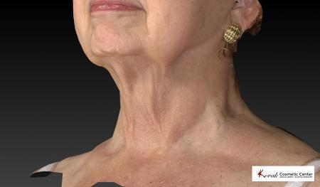 Kybella: Patient 3 - After Image 4