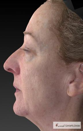 Tyte And Bryte – Face: Patient 6 - After Image 3