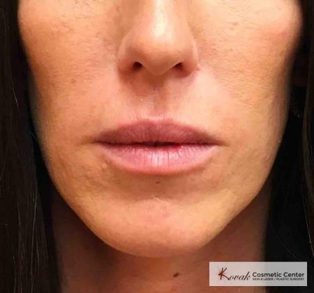 Injectables: Patient 8 - Before Image
