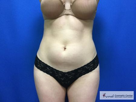 CoolSculpting®: Patient 17 - Before