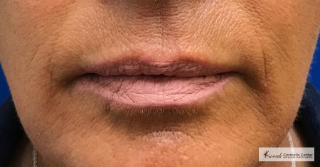 Injectables - Lips: Patient 1 - Before Image