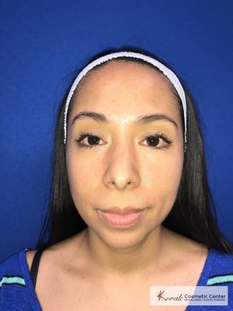 Restylane®: Patient 3 - Before Image