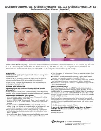 Before and After Gallery for Jevederm XC Dermafillers - After Image