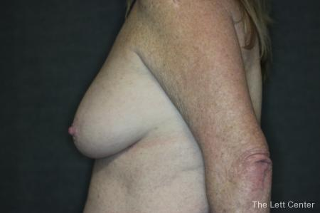 Breast Augmentation and lift - Before Image 2