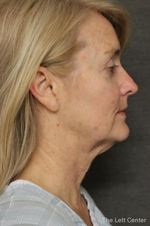 Facelift: Patient 1 - Before and After Image 3