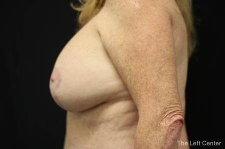 Breast Augmentation and lift -  After Image 2