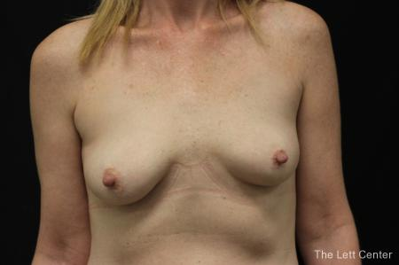 Breast Augmentation: Patient 2 - Before Image