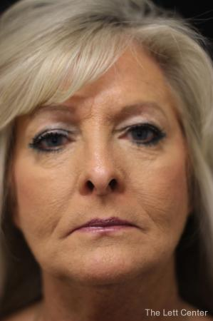 Blepharoplasty: Patient 1 - Before Image 1