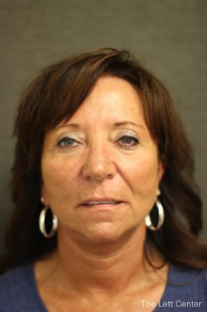 Facelift: Patient 2 - After Image 1