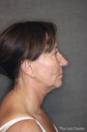 Facelift: Patient 2 - Before Image 3