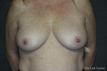 Breast Augmentation and lift - Before Image