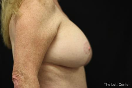 Breast Augmentation and lift -  After Image 3
