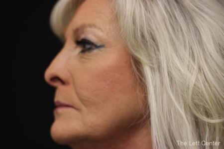 Blepharoplasty: Patient 1 - Before and After Image 3