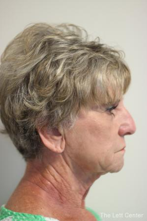 Facelift: Patient 4 - Before Image 3