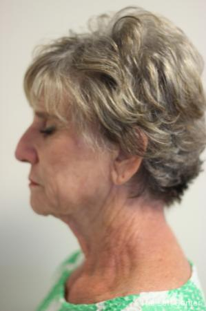Facelift: Patient 4 - Before Image 2