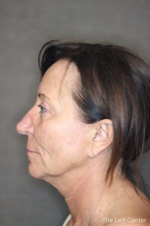 Facelift: Patient 2 - Before Image 2