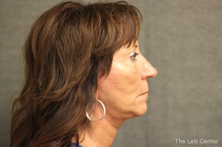Facelift: Patient 2 - After Image 3