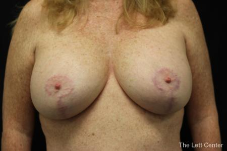 Breast Augmentation and lift - After Image