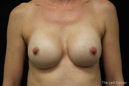 Breast Augmentation: Patient 4 - After Image