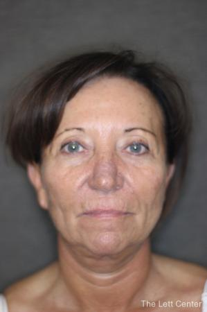 Facelift: Patient 2 - Before and After Image 4