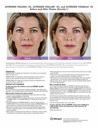 Before and After Gallery for Jevederm XC Dermafillers - Before Image