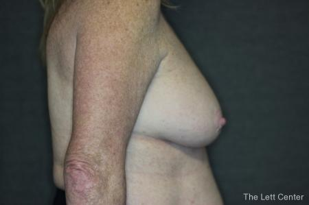 Breast Augmentation and lift - Before and After Image 3