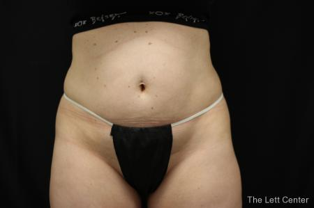 bodytite body contouring - Before Image