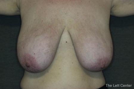 Breast Reduction: Patient 1 - Before Image