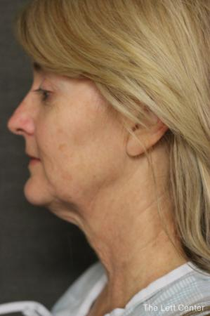 Facelift: Patient 1 - Before Image 2